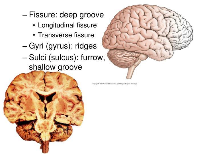Fissure: deep groove