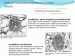 tipos de glomeruloesclerosis global obleas