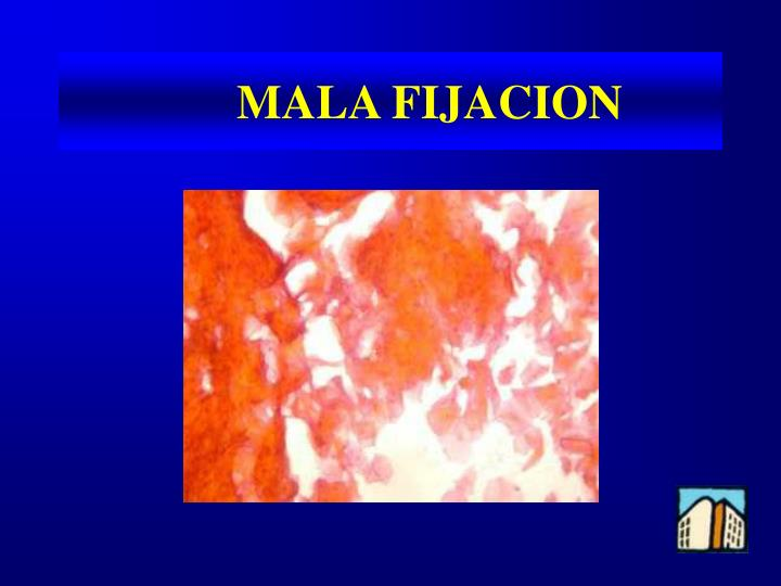 MALA FIJACION
