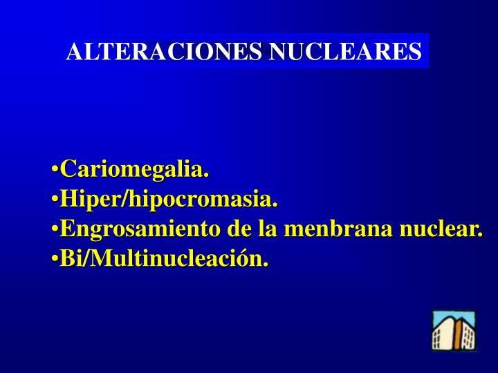 ALTERACIONES NUCLEARES