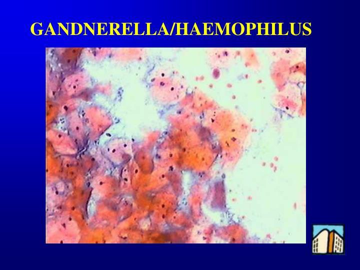 GANDNERELLA/HAEMOPHILUS