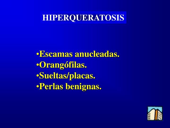 HIPERQUERATOSIS