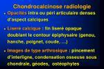 chondrocalcinose radiologie