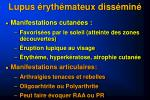 lupus ryth mateux diss min1