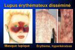 lupus ryth mateux diss min2