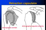 r traction capsulaire1