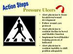 pressure ulcers2