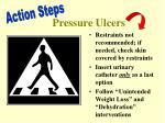 pressure ulcers3