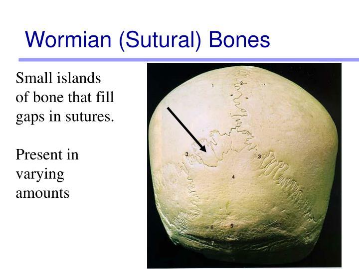 Wormian (Sutural) Bones