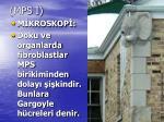 mps i2