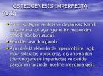 osteogenes s mperfecta o