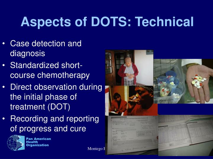 Aspects of DOTS: Technical