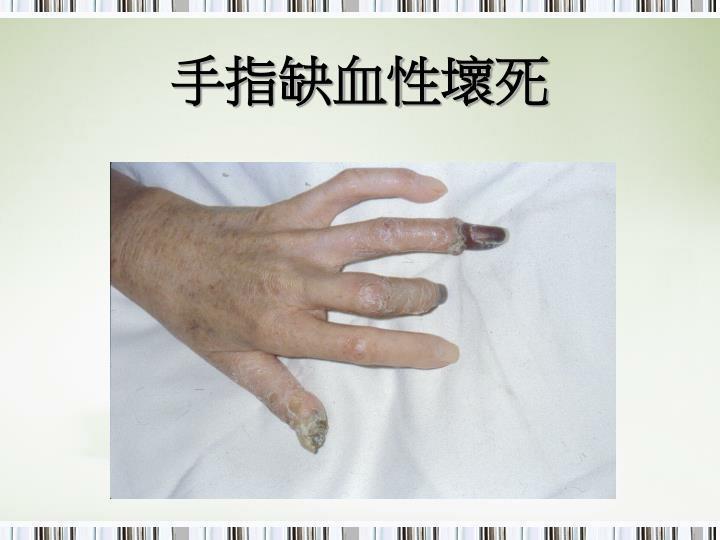 手指缺血性壞死