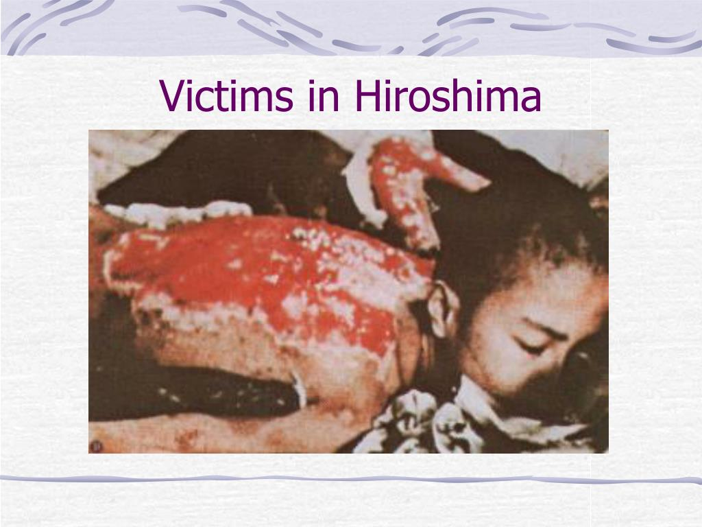 Victims in Hiroshima