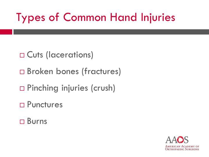 Cuts (lacerations)