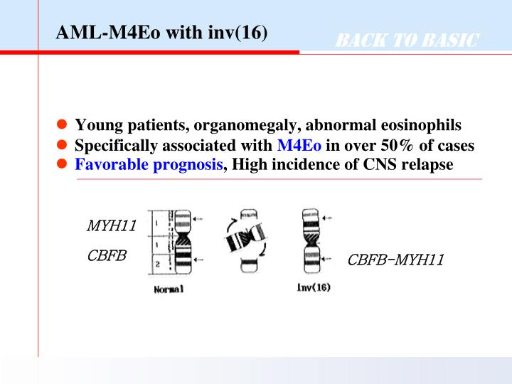 AML-M4Eo with inv(16)