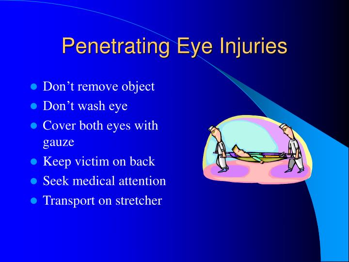 Penetrating Eye Injuries