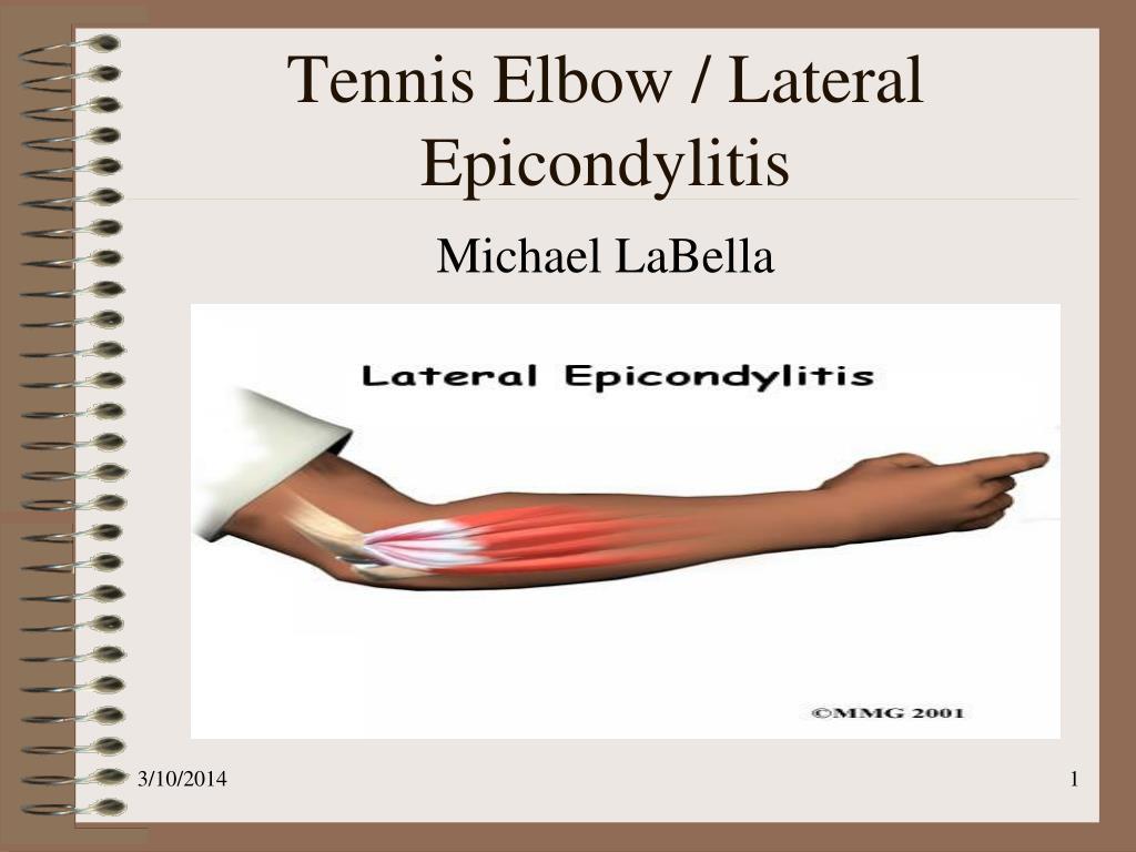 PPT - Tennis Elbow / Lateral Epicondylitis PowerPoint Presentation ...