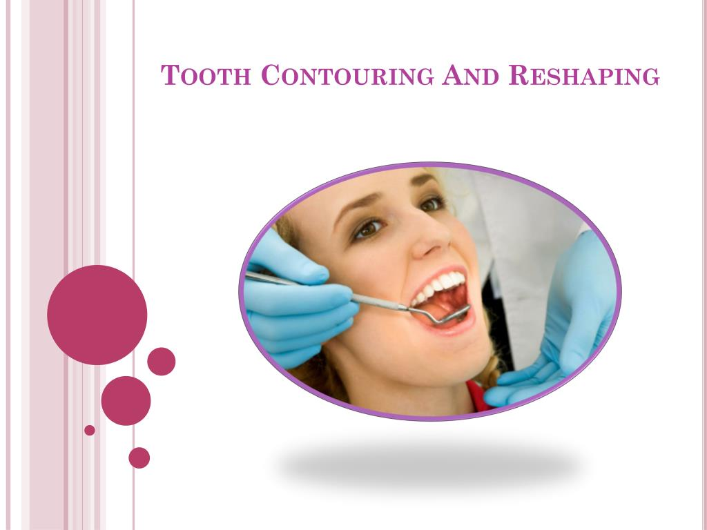 tooth contouring and reshaping l.