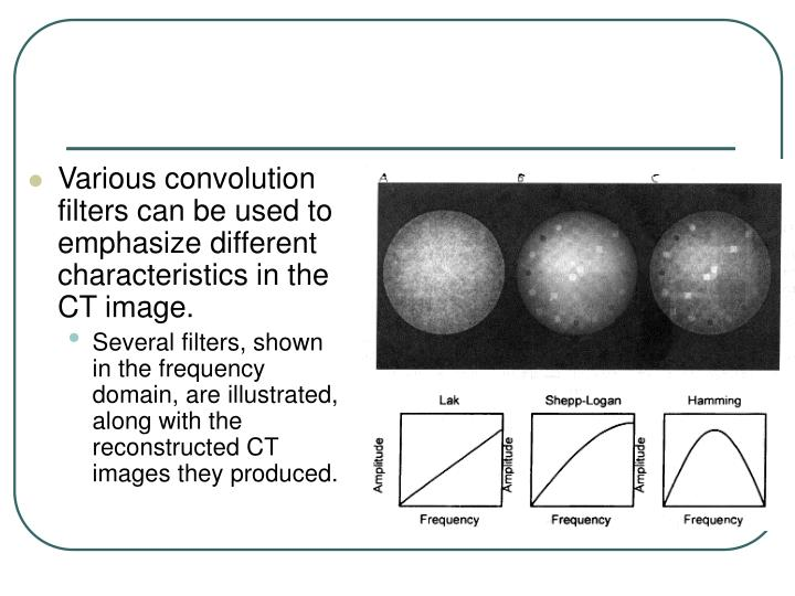 Various convolution filters can be used to emphasize different characteristics in the CT image.