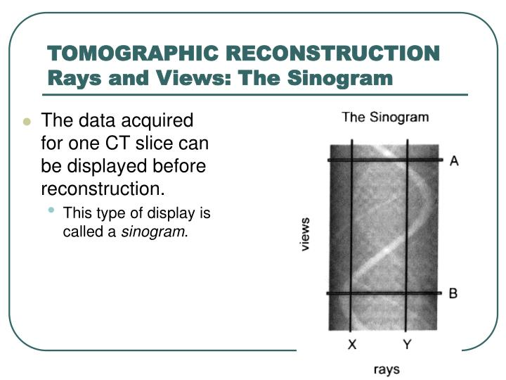 TOMOGRAPHIC RECONSTRUCTION Rays and Views: The Sinogram