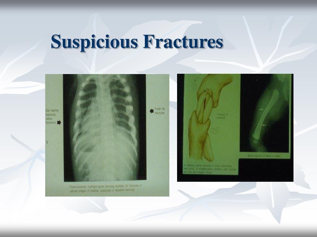 Suspicious Fractures