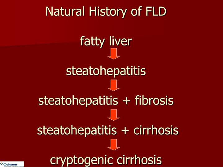 Natural History of FLD