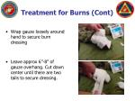 treatment for burns cont