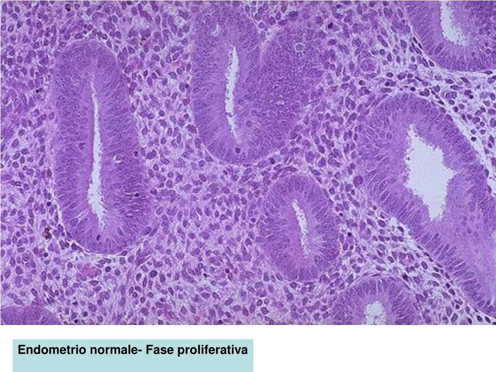 malattia fibrocistica di tipo proliferativo con iperplasia duttale florida