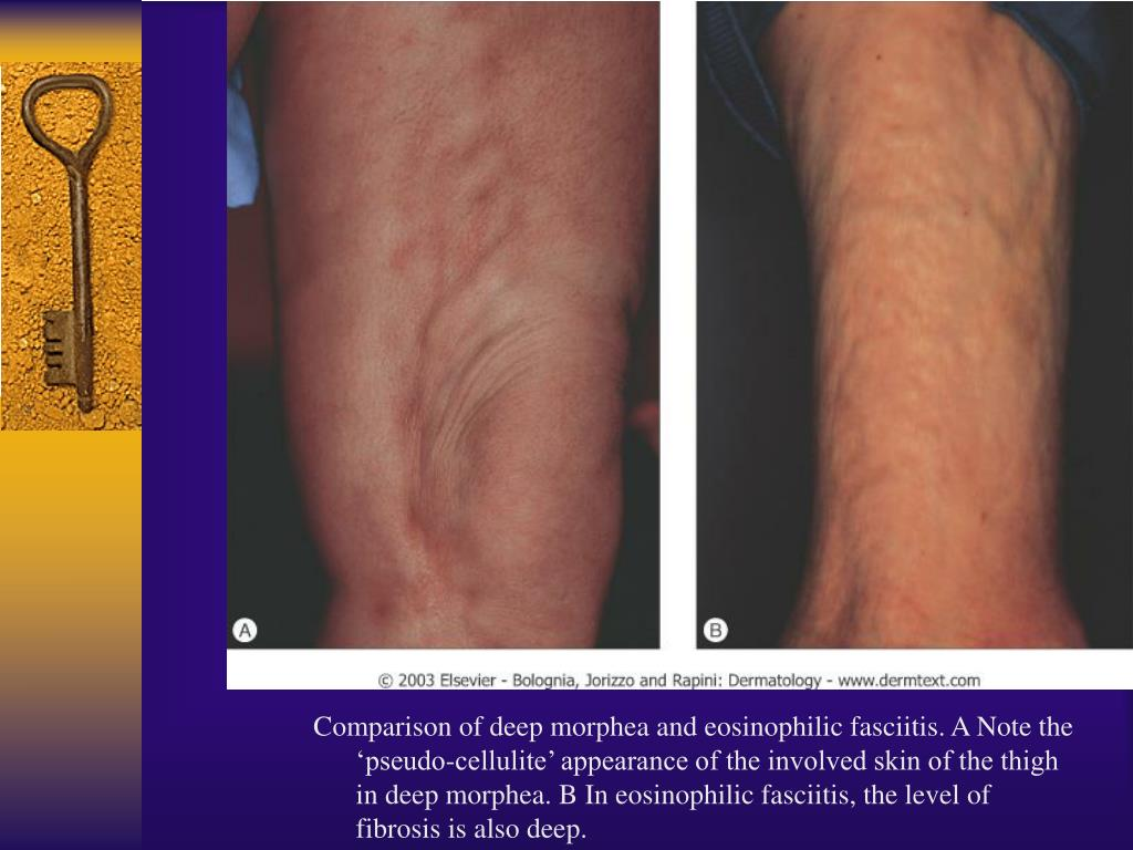 Comparison of deep morphea and eosinophilic fasciitis. A Note the 'pseudo-cellulite' appearance of the involved skin of the thigh in deep morphea. B In eosinophilic fasciitis, the level of fibrosis is also deep.