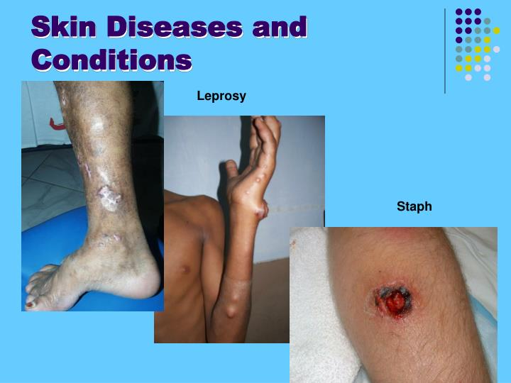Skin Diseases and Conditions