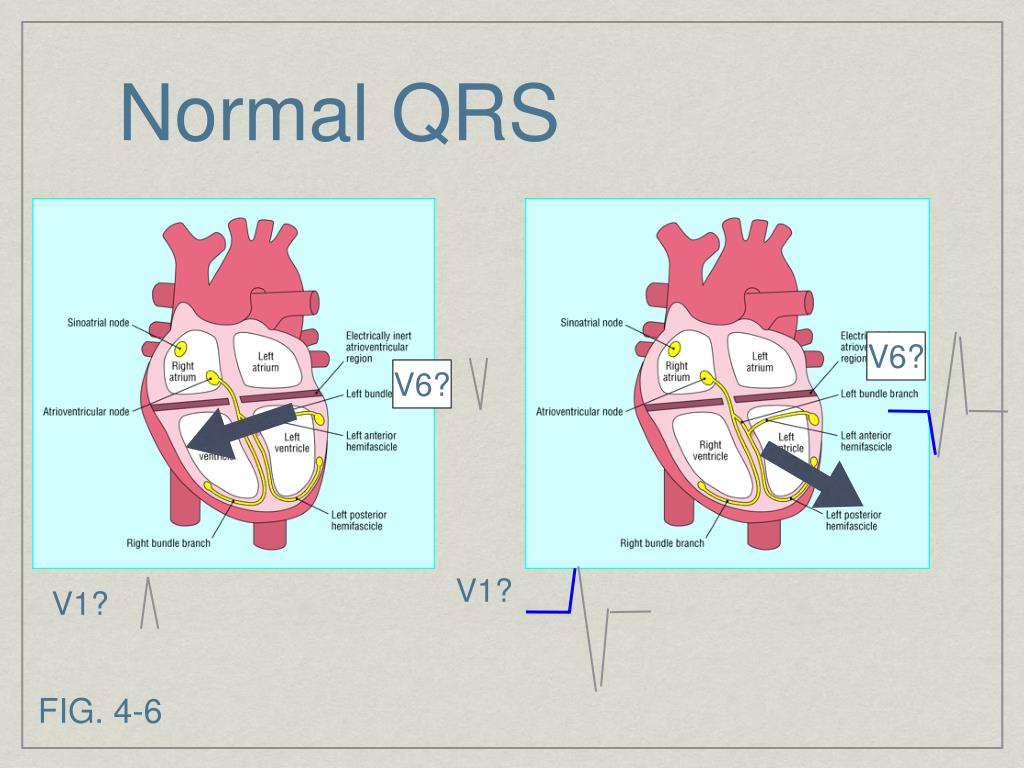 Normal QRS
