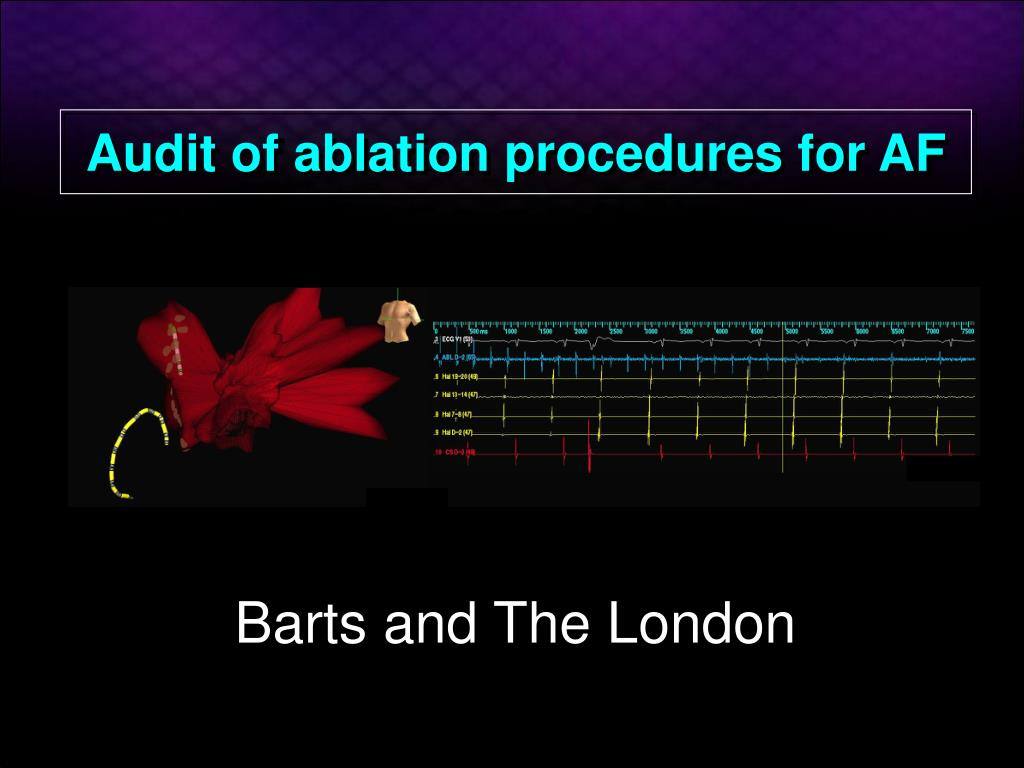 audit of ablation procedures for af l.