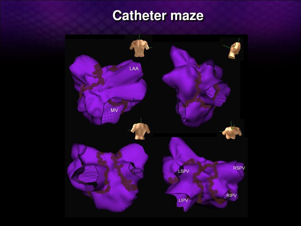 Catheter maze