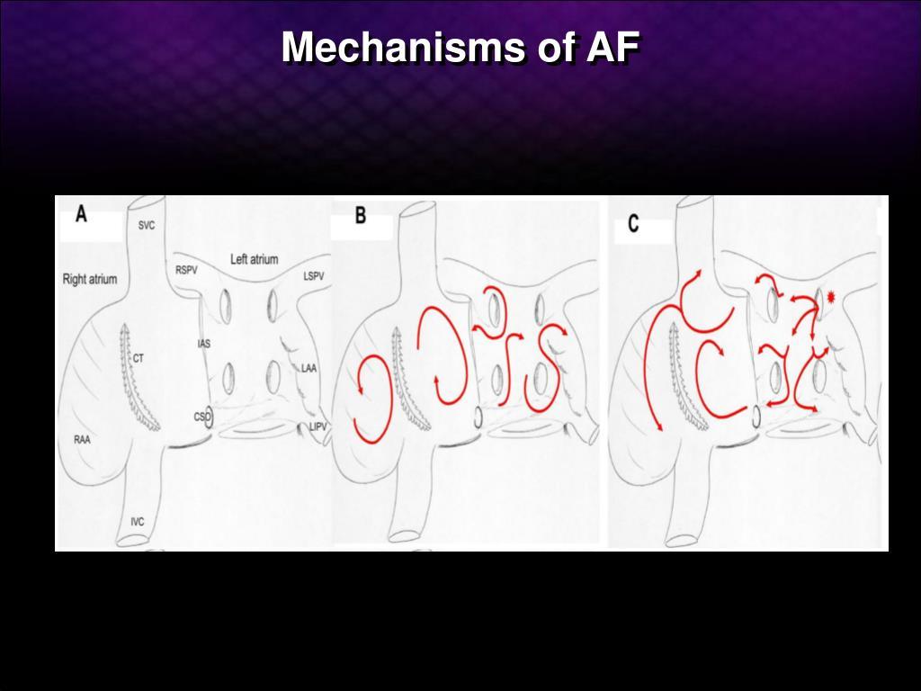 Mechanisms of AF