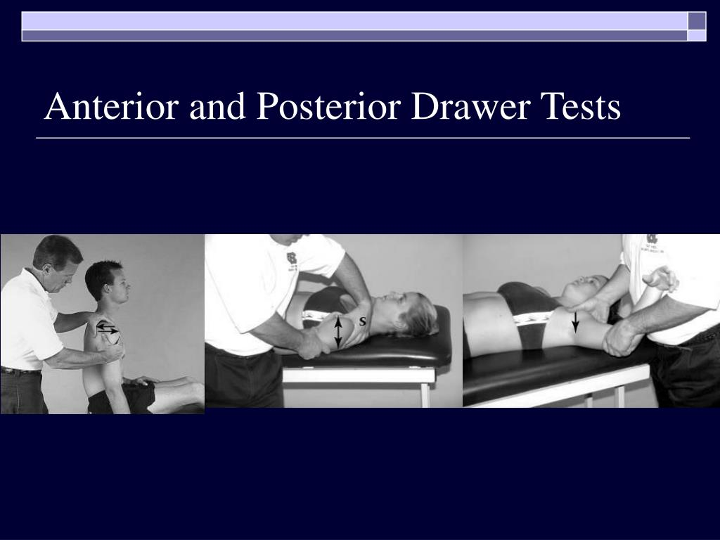 Anterior and Posterior Drawer Tests