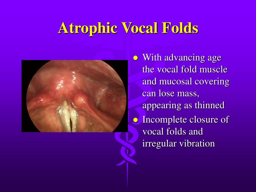 Atrophic Vocal Folds