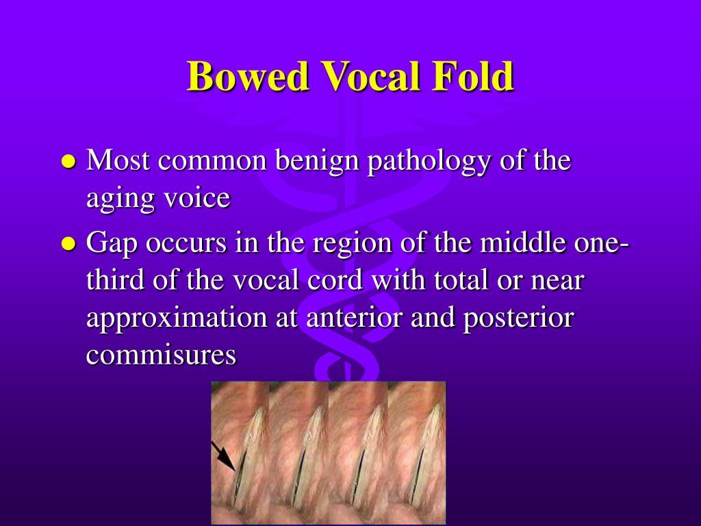 Bowed Vocal Fold