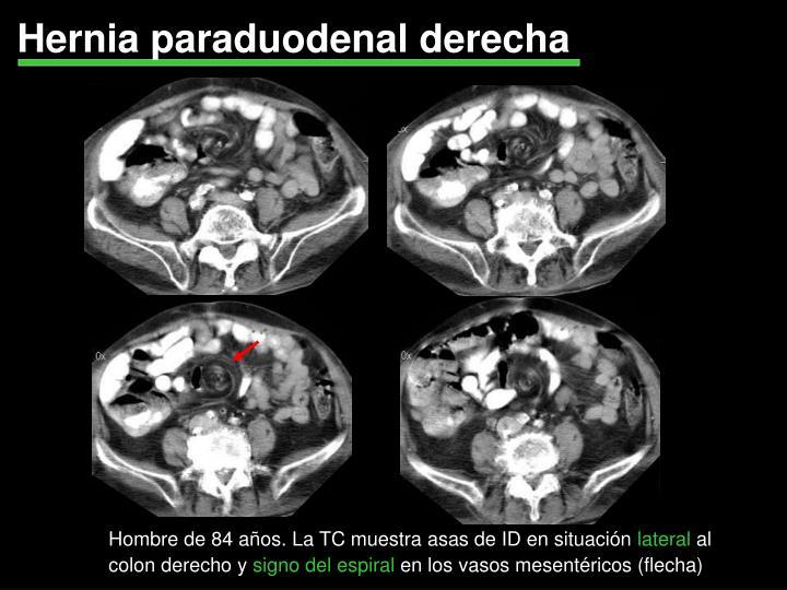 Hernia paraduodenal derecha