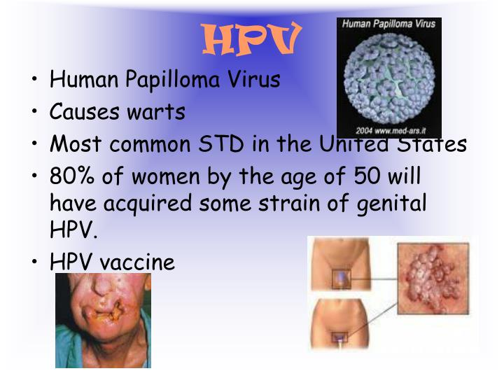 effects of hpv Hpv vaccine side effects as with any medication, there are potential hpv vaccine side effects, including pain at the injection site, diarrhea, and nausea however, most people tolerate the vaccinations well and, in many cases, the side effects are minor and can easily be treated by you or your healthcare provider.