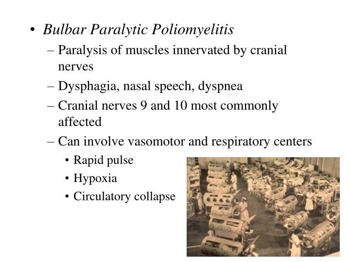 Bulbar Paralytic Poliomyelitis