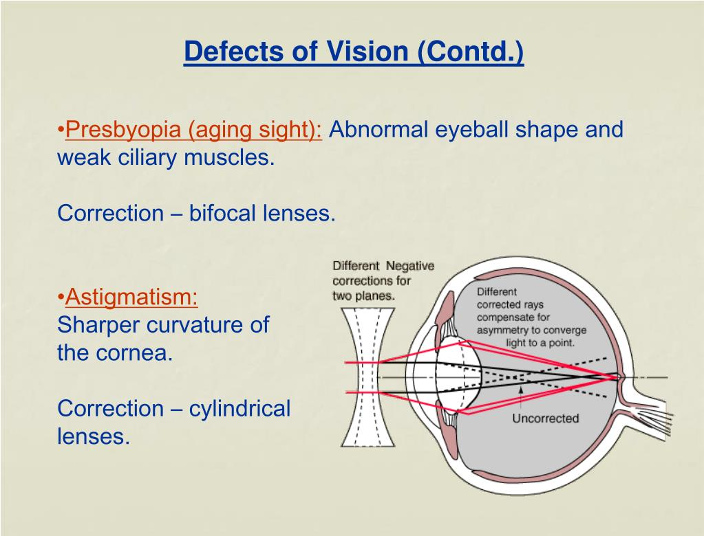 Defects of Vision (Contd.)
