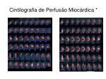 cintilografia de perfus o mioc rdica1