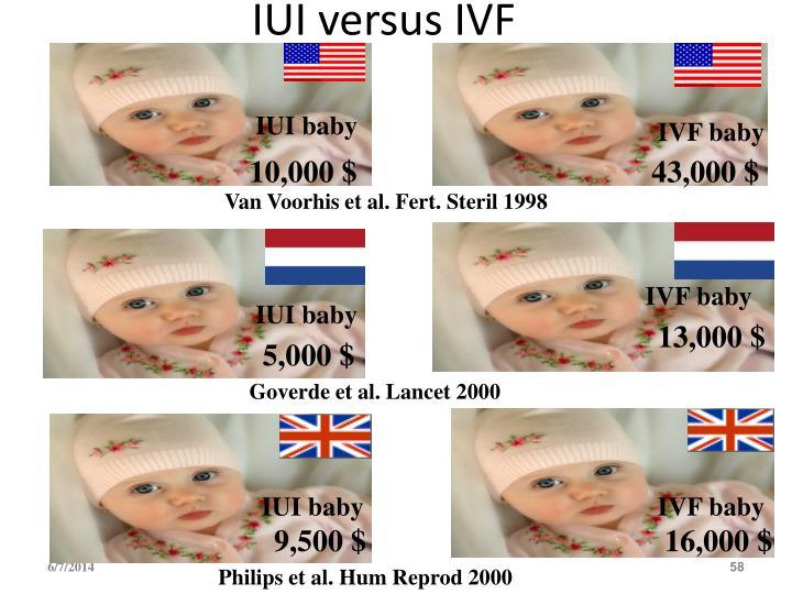 IUI versus IVF