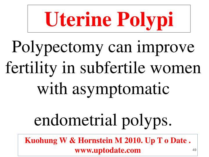 Uterine Polypi