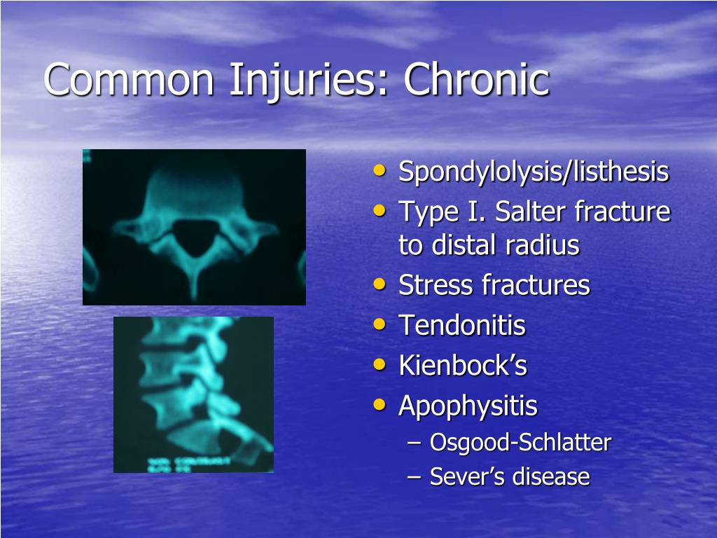 Common Injuries: Chronic
