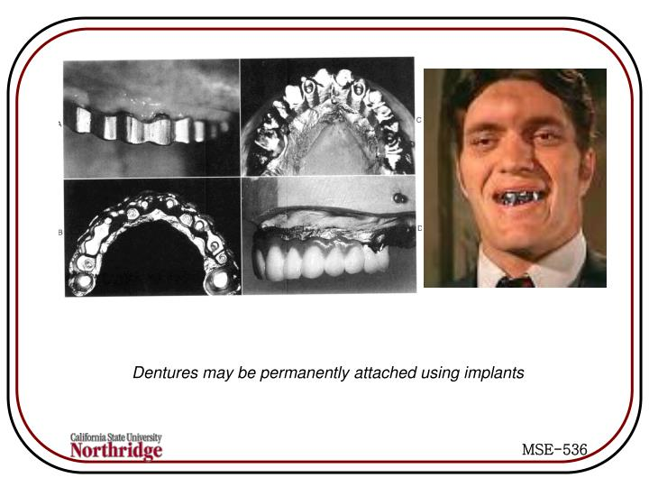 Dentures may be permanently attached using implants