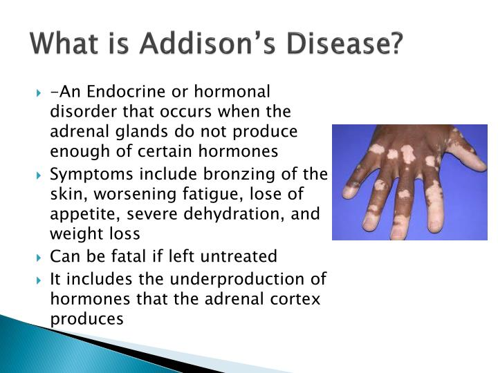 the characteristics of the addisons disease a rare disorder This may be referred to as autoimmune addison's disease, or primary adrenal and characteristics of the adrenal causes of rare genetic disorders.
