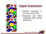 digital subtraction