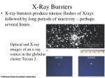 x ray bursters